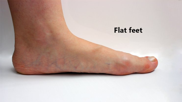 How To Choose Best Shoes For Your Flat Feet?