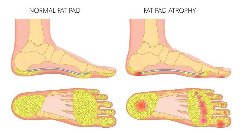 Natural Cushioning Of Your Footpad Get Thin