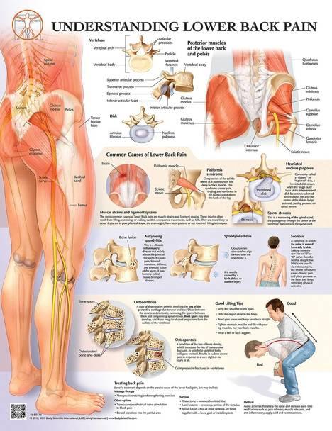 back pain understanding